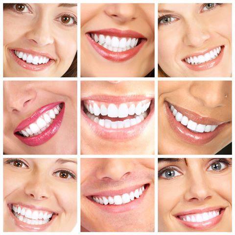 Skegness teeth whitening
